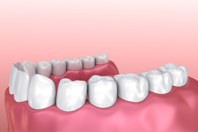 esthétique dentaire Is-sur-Tille